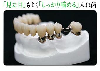 「見た目」もよく「しっかり噛める」入れ歯