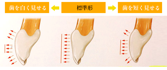 歯を長く見せる 標準形 歯を短く見せる